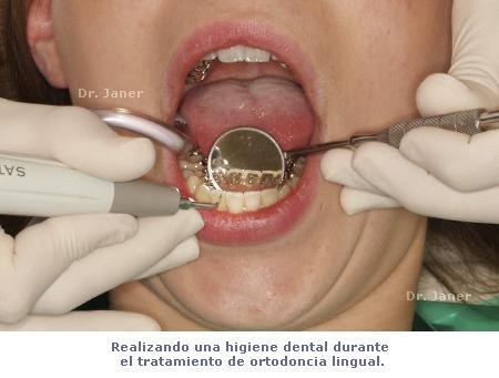 Higiene dental con ortodoncia lingual en JanerOrtodoncia